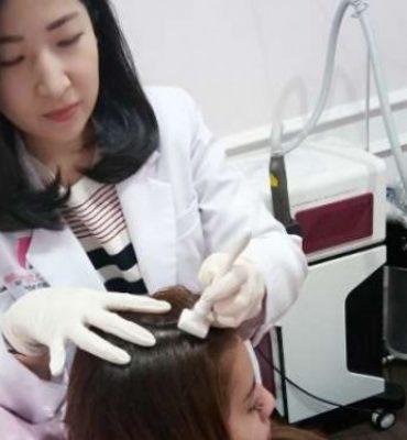 Solusi Kebotakan Rambut Pakai Stempel